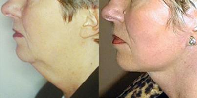 avant-apres-lifting-chirurgie-medecine-esthetique-nice-docteur-kestemont-2