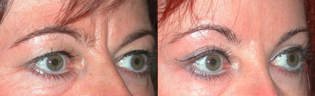 avant-apres-acide-hyaluronique-chirurgie-medecine-esthetique-nice-docteur-kestemont-2