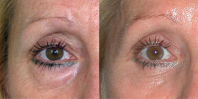 avant-apres-blepharoplastie-chirurgie-medecine-esthetique-nice-docteur-kestemont-2