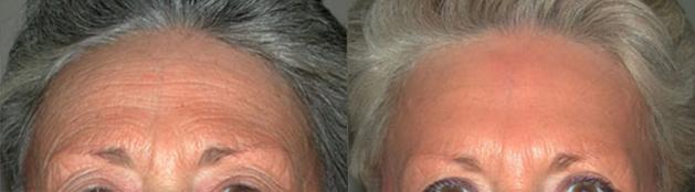 spécialiste chirurgie esthétique de la Face et du Cou