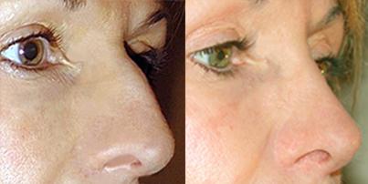 avant-apres-rhinoplastie-chirurgie-medecine-esthetique-nice-docteur-kestemont