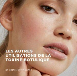 les autres utilisations de la toxine botulique - docteur kestemont
