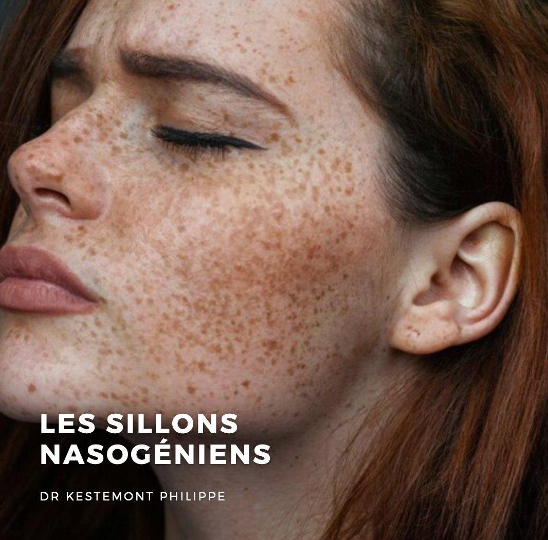 les sillons nasogeniens docteur kestemont chirrugien face et cou nice