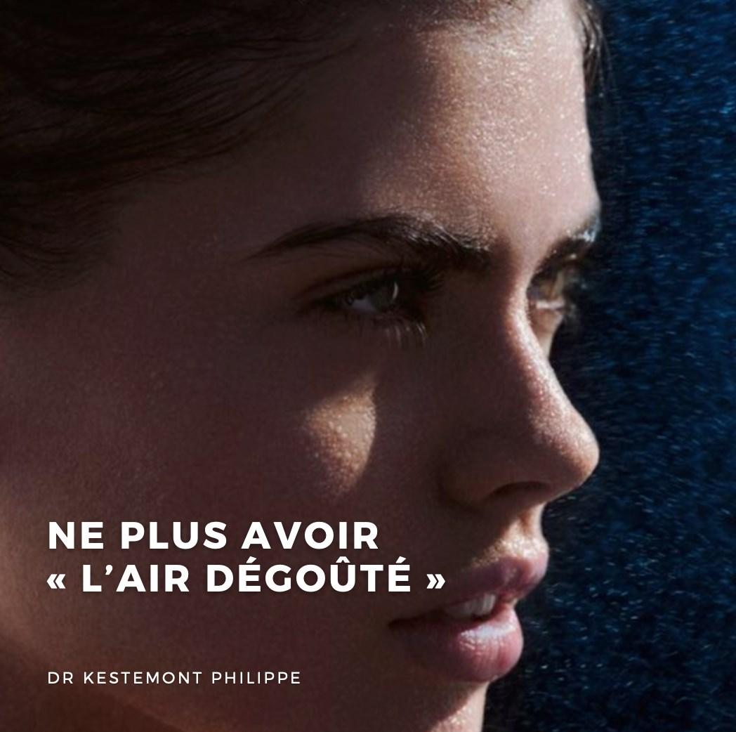 ne plus avoir l'air degouté - docteur philippe kestemont chirurgien de la face et du cou Nice